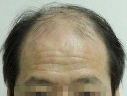 脱发患者要在饮食上注意什么